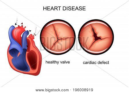 vector illustration of a heart defect. cardiology