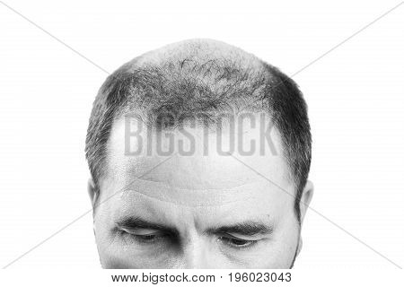 Middle-aged man concerned by hair loss bald baldness alopecia black and white poster
