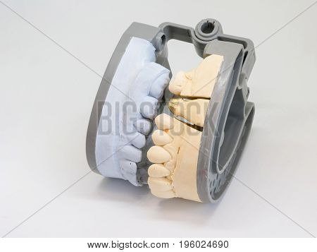 Dental casting gypsum model plaster cast stomatology human jaws prothetic laboratory