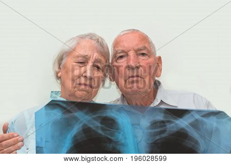 The medicine, age, health care and people concept - the sad senior woman and man looking at X-ray on gray background