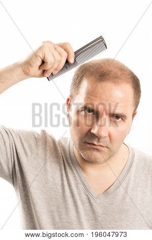 Middle-aged man concerned by hair loss bald baldness alopecia black and white