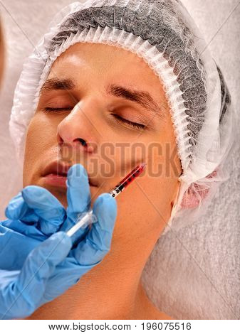 Filler injection for male forehead face. Plastic aesthetic facial surgery in beauty clinic. Man giving anti-aging injections for healthy complexion. Removal of skin defects.