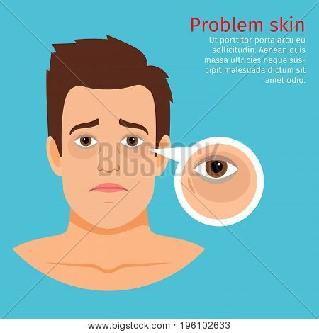 Young man face problem skin with black circles under the eyes, vector illustration