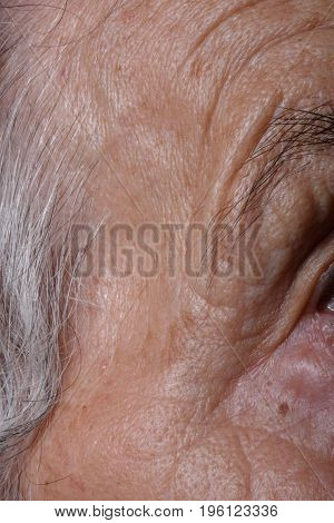 Wrinkles On The Face And Near The Eyes