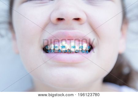 Little girl shows her new braces