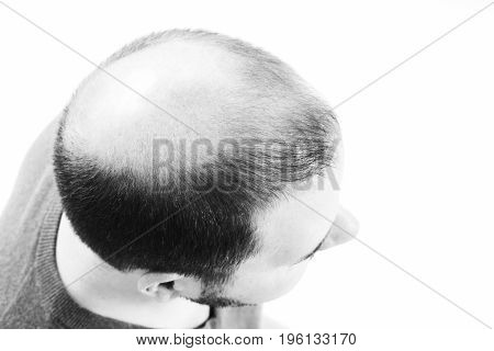 Middle-aged man concerned by hair loss bald baldness alopecia black and white on white background poster