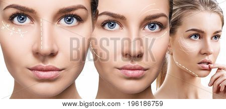Young beautiful woman with white arrows on her face. Face lifting concept. poster