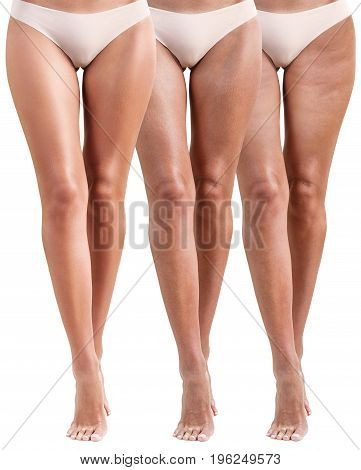 Front view of woman legs before and after treatment. Cellulite problem concept.