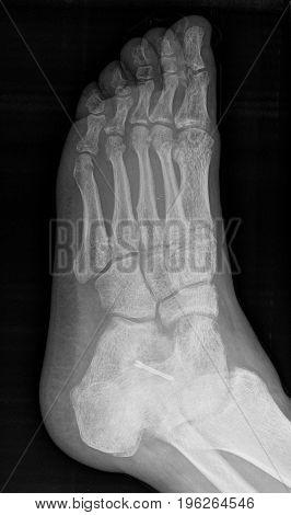 Herbert Screw Fixation Of Fracture - X-ray.