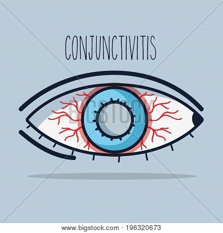 conjunctivitis allergic inflammation of vision eye vector illustration