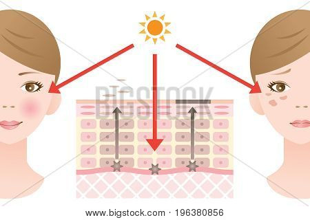 Infographic skin illustration and vector. skin spot mechanism