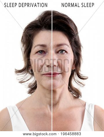 Mature woman before and after exhaustion caused by sleep deprivation on white background