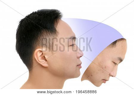 Young man before and after acne treatment on white background. Skin care concept