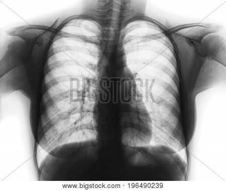 Film chest x-ray of normal woman chest .