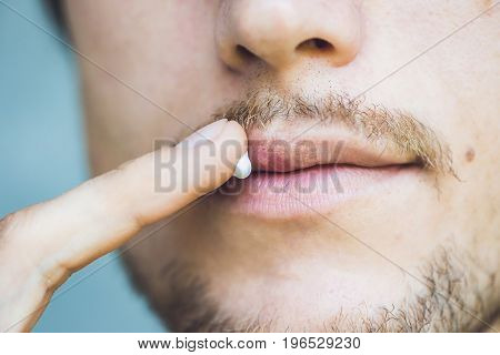 Herpes On Lips Of The Young Man. Man Smears Herpes With Herpes Cream