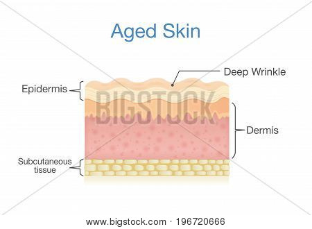 Aged skin layer in 3D vector style. Illustration about health care and beauty.