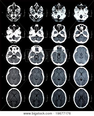 Series of images from a computerized tomography of the brain poster