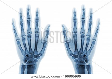 Film x-ray both hand AP show normal human hands on white background ( isolated ) .