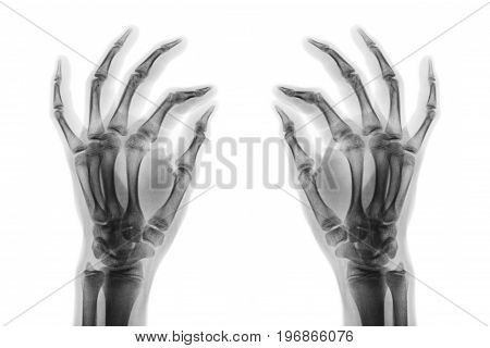X-ray normal human hands on white background . Oblique view .