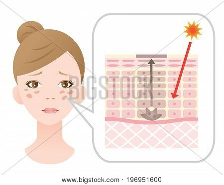 Infographic skin illustration. skin spot mechanism. health care and beauty concept