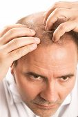 Middle-aged man concerned by hair loss bald baldness alopecia isolated poster