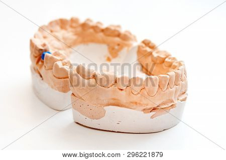 Plaster Cast Of Jaws. Dental Casting Gypsum Model Human Jaws In Prosthetic Laboratory. Dentistry, Or