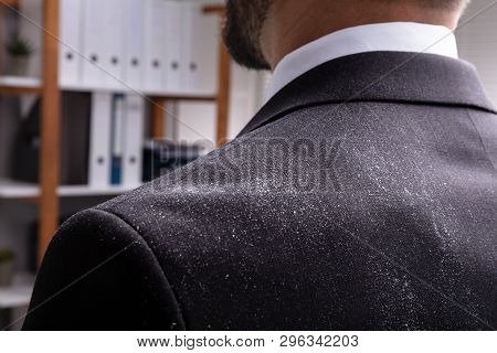 Close-up Of A Businessperson In Black Suit With Dandruff On His Shoulder