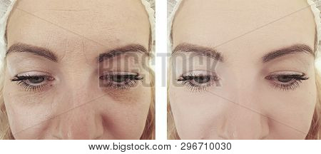 woman wrinkles before and after treatments biorevitalization poster
