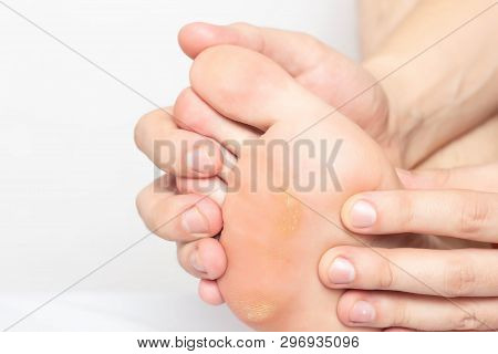 Man Shows Problem Skin On The Foot And Sole Of The Foot Dry And Callous Skin With Mazols With A Stem