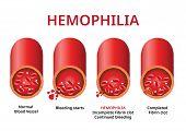 Hemophilia. damaged blood vessel, Haemophilia (Coagulation disorder) - Vector poster