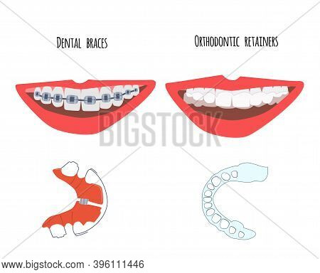 Two Human Mouth With Dental Braces And Orthodontic Transparent Retainers On Teeth. Choice Between Th