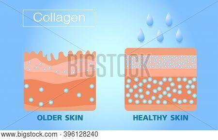 Collagen, Older Skin And  Hearlthy Skin ,protection Skin, Vector Design