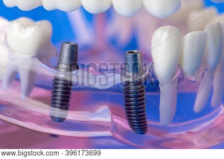 Dental Implant Bridge Screws In Human Jaw Teeth Model
