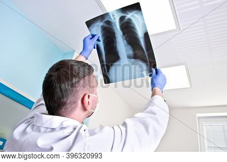 Doctor In The Hospital Looks At The X-ray Of The Lungs.