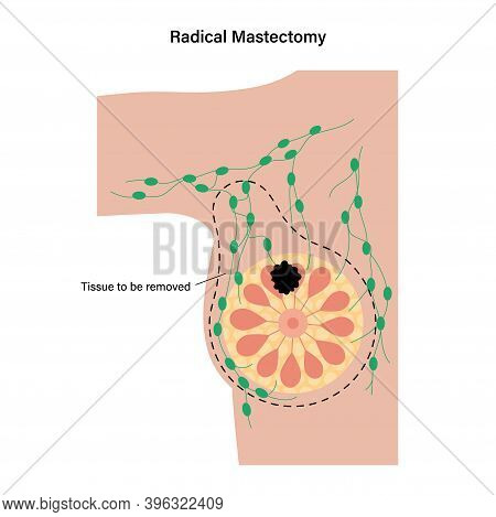 Female Radical Mastectomy Concept. Surgery To Remove Cancerous Tissue. Breast Cancer And Tumor In Wo
