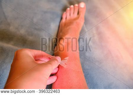 Burnt Red Skin On The Legs After Sunburn, Real Photo, Background