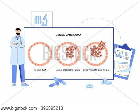 Normal Duct, Cancer In Situ And Invasive Ductal Carcinoma Diagram. Tumor Development In The Human Bo