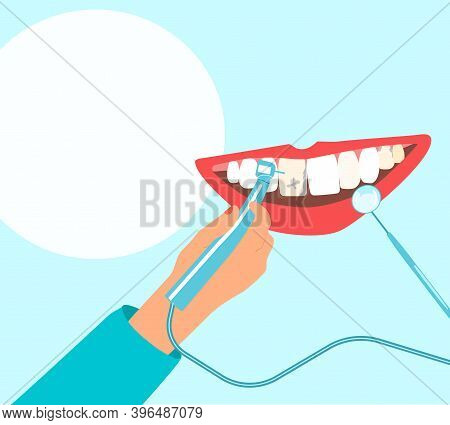 Dentist Hand Holding Drill Bit And Cures Teeth With Caries, Removing Plaque.human Mouth With Gums.or