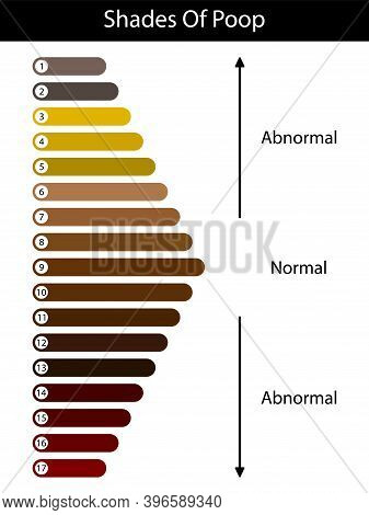 Shades Color Of Poop. Human Feces Color. Healthy Concept. Normal And Abnormal Value Scale.