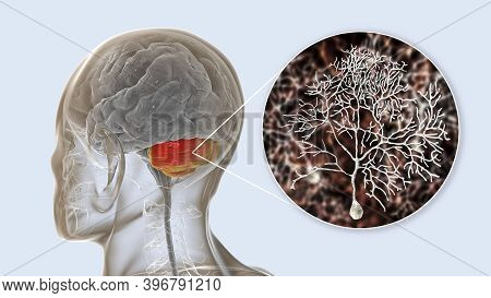 Human Brain With Highlighted Cerebellum And Close-up View Of Purkinje Neurons, One Of The Commonest