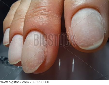 Untreated Nails. Fingers With Manicure Without Gel Polish Close Up