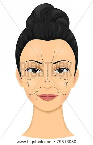 Illustration of a Woman with Incision Lines Drawn on Her Face