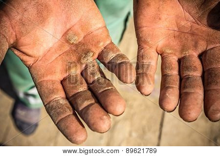 Worker is showing his chapped hands dirty and injured palms. poster