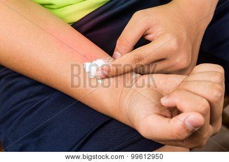 Baking Soda Being Used To Relieve Itching From Rashes.