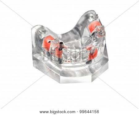 glass jaw model with implanted dentures Isolated on white poster