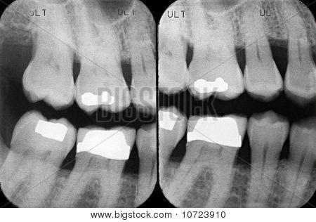 Left Periodontal X-rays