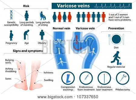 Varicose Veins. infographics