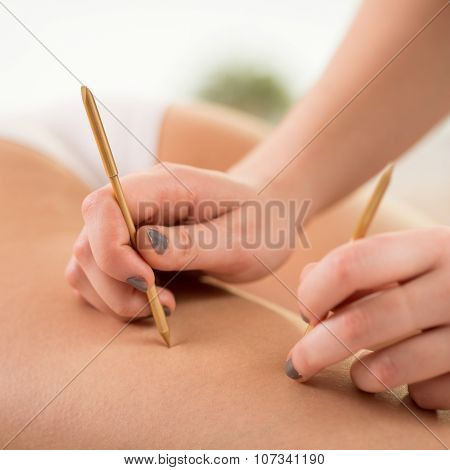 Beautician using acupuncture needles to reduce cellulite poster