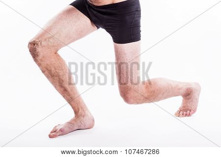 People With Varicose Veins Of The Lower Extremities And Venous Thrombophlebitis And Standing On A Wh