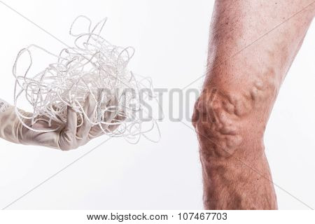 A Tangle Of Ropes With A Man Being Ill With Varicose Veins Of The Lower Extremities And Venous Throm